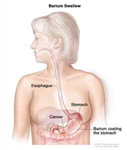 Barium swallow for stomach cancer; drawing shows barium liquid flowing through the esophagus and into the stomach.
