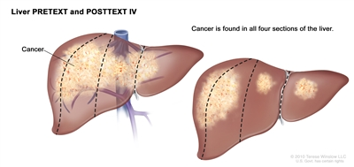 Liver PRETEXT Stage 4; drawing shows two livers. Dotted lines divide each liver into four vertical sections that are about the same size. In the first liver, cancer is shown across all four sections. In the second liver, cancer is shown in the two sections on the left and spots of cancer are shown in the two sections on the right.