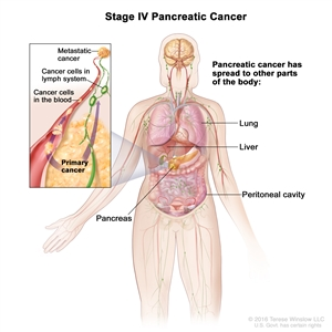 Stage IV pancreatic cancer; drawing shows cancer has spread beyond the pancreas. Inset shows cancer spreading through the blood and lymph nodes to the lung, liver, peritoneal cavity, and other parts of the body.