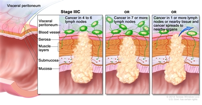 Stage IIIC colorectal cancer; shows a cross-section of the colon/rectum wall and a three-panel inset. Each panel shows the layers of the colon/rectum wall: mucosa, submucosa, muscle layers, and serosa. Also shown are a blood vessel and lymph nodes. First panel shows cancer in all layers, spreading through the serosa, and in 4 lymph nodes. Second panel shows cancer in all layers and in 7 lymph nodes. Third panel shows cancer in all layers, spreading through the serosa, in 2 lymph nodes, and spreading to nearby organs.