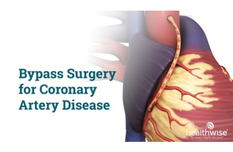 Bypass Surgery for Heart Disease