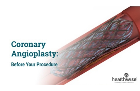 Angioplasty for Heart Disease