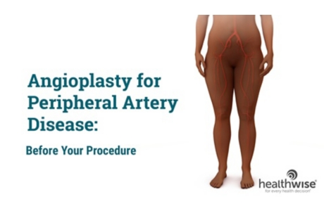 Angioplasty for Peripheral Arterial Disease of the Legs