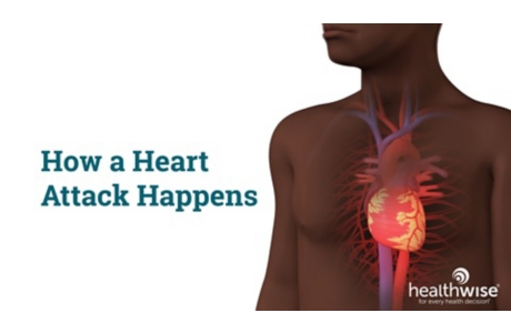 How a Heart Attack Happens
