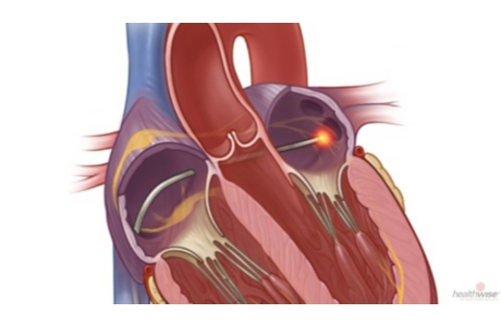 Catheter Ablation for Atrial Fibrillation