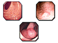 Photographs of colon polyps visible with a colonoscope