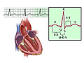 Picture of the intervals and components of an EKG (electrocardiogram)