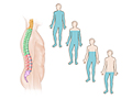 Picture of areas of the body affected by spinal cord injuries