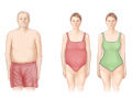 Picture of apple-shaped and pear-shaped body fat distribution
