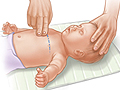 Picture of where to position hands for doing CPR chest compressions on a baby