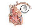 Picture of a pacemaker for the heart (cardiac resynchronization therapy)