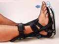 Night brace for Achilles tendon problems
