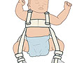 Picture of a Pavlik harness on a baby