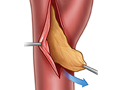 Carotid endarterectomy procedure