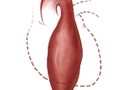 Picture of a thoracic aortic aneurysm